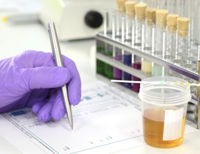 Workplace Drug & Alcohol Testing – MECX Medical